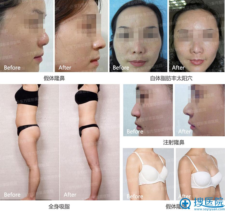 郑州东方整形医院王福生主任案例展示: