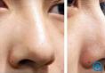 沧州枫华林敬华解析 玻尿酸隆鼻和假体隆鼻的区别