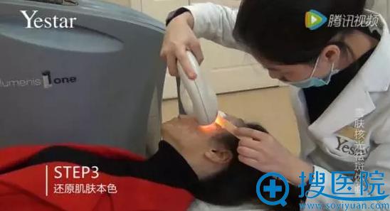 艺星雪肤核光第三步开始表皮层治疗