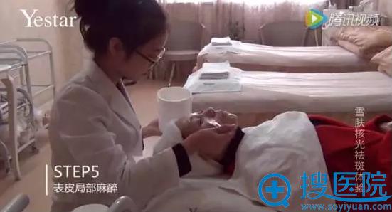 艺星雪肤核光第五步表皮局部麻醉