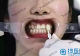 看我在温州艺星整形医院做的美容冠每颗价格800元 丑牙7天消失