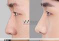 韩国原辰整形外科医院鼻子整形案例 效果好不好看过案例就知道