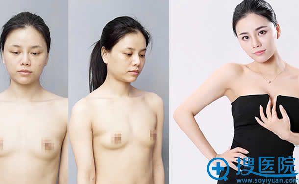 上海华美隆胸案例效果对比
