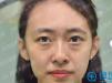 北京美诗沁谭贵苗非手术专利除眼袋案例 不开刀祛眼袋