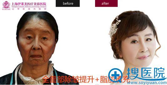 上海伊莱美整形面部除皱案例图