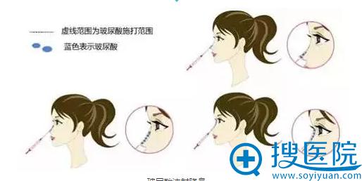 玻尿酸注射隆鼻原理示意图