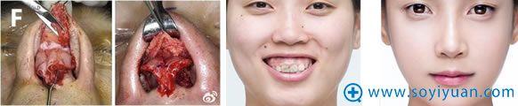 鼻翼缩小手术操作及案例图