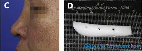 假体隆鼻的并发症与预防手段
