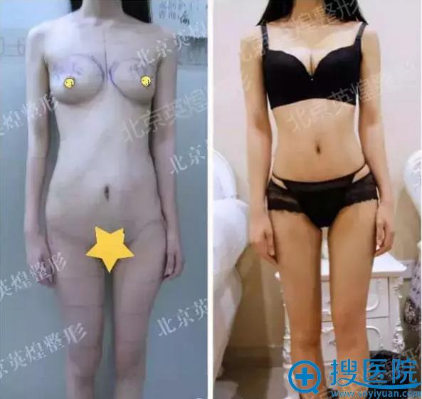 梁耀婵院长为我做自体脂肪丰胸和形体精雕的前后对比照片