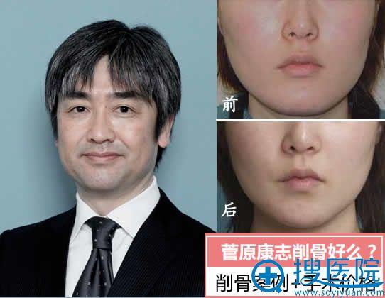 日本医生菅原康志削骨好么?
