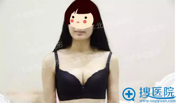 给大家看张我自体脂肪隆胸后的正面照