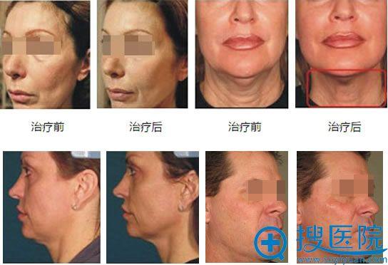 超声刀面部治疗效果对比图