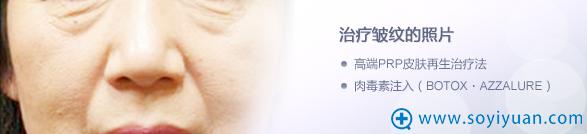 日本圣心医疗美容医院PRP除皱治疗价格表+前后对比照片