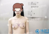 看我在北京英煌整形医院找梁耀婵院长做自体脂肪隆胸的亲身经历