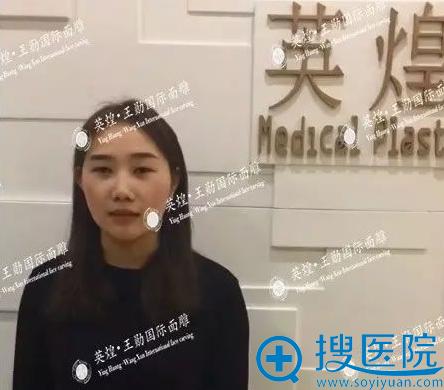 分享我在北京英煌找王勋院长做假体隆鼻+双眼皮手术的真实经历