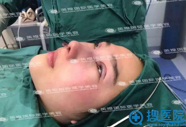 假体隆鼻+双眼皮术后即刻效果,王勋院长技术很棒吧