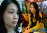 分享我在上海宏康整形医院做鼻子和下颌角整形三个月的恢复日记