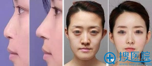 韩国李寒松教授面部鼻部整形案例