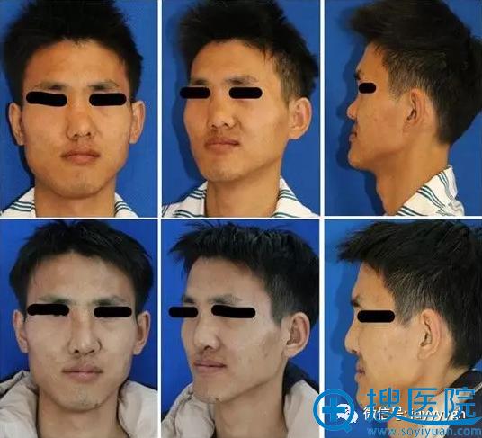 吉大一院整形外科邵英男性肋软骨移植矫正重度鞍鼻畸形案例