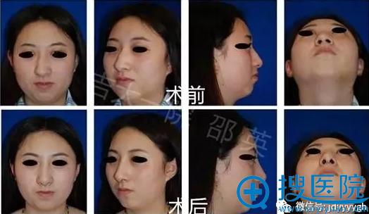 吉大一院整形外科邵英歪鼻畸形矫正案例一(全方位视图)