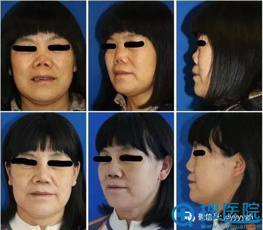 吉大一院整形外科邵英女性肋软骨移植矫正重度鞍鼻畸形案例