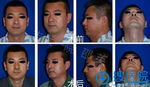 吉大一院整形外科邵英男性歪鼻畸形矫正案例(全方位视图)