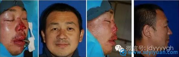 吉大一院整形外科邵英鼻缺损的修复案例二