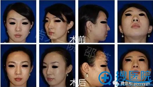 吉大一院整形外科邵英歪鼻畸形矫正案例二(全方位视图)