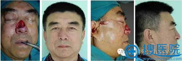 吉大一院整形外科邵英鼻缺损的修复案例一