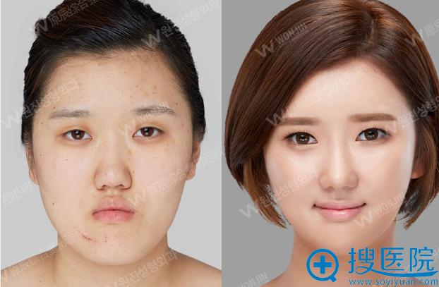 韩国原辰整形医院颧骨整形前后对比照