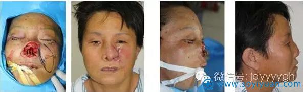 吉大一院整形外科邵英鼻缺损的修复案例三