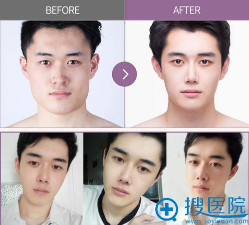 韩国巴诺巴奇整形医院男性V型脸下颌角手术前后对比照