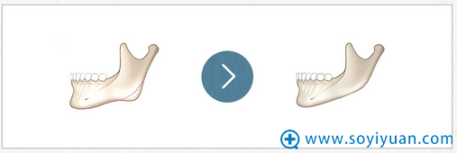 韩国巴诺巴奇骨线切骨术方法