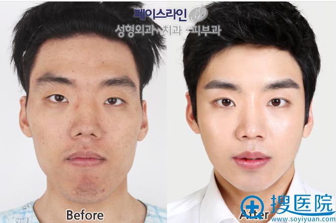 韩国FACE-LINE整形外科医院smart双颚手术前后对比照