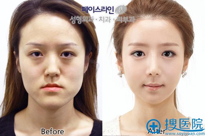 韩国FACE-LINE整形外科医院颧骨+长曲线+下巴整形前后对比案例
