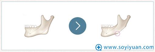 韩国巴诺巴奇直线切骨术手术方法演示