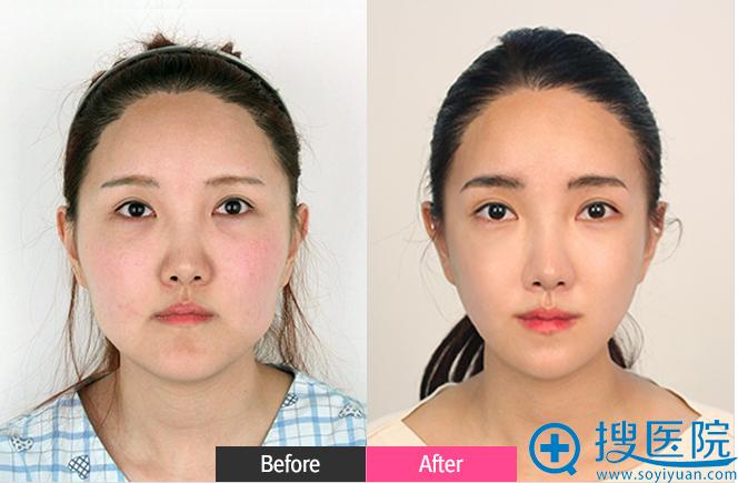 韩国FACE-LINE整形外科医院下颌角+颧骨整形案例