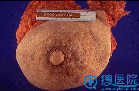 因乳腺癌被切除的乳房