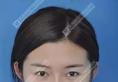 北京美雅枫面部线雕提升真人案例 术后接工作到手软