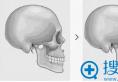 韩国原辰整形医院 不同的下巴类型有不同的解决方案 请对号入座
