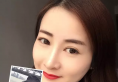 武汉新至美谭式4D隐形隆鼻真人案例 一步晋级成女神