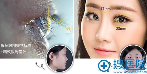 上海华美整形双眼皮手术效果图
