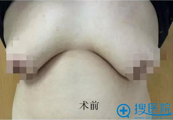 男性巨乳缩小术前情况