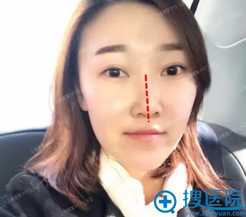 这是术前,鼻假体移位了