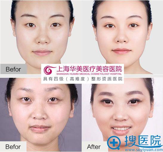 上海华美整形双眼皮成功案例