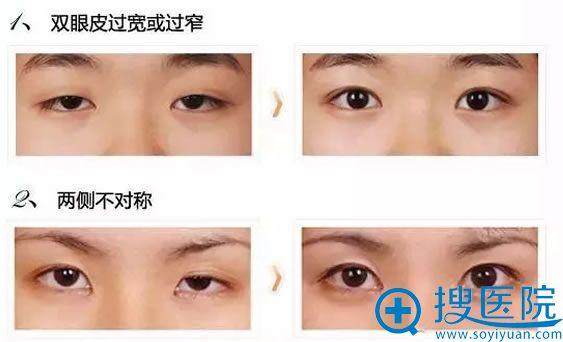双眼皮失败案例效果图