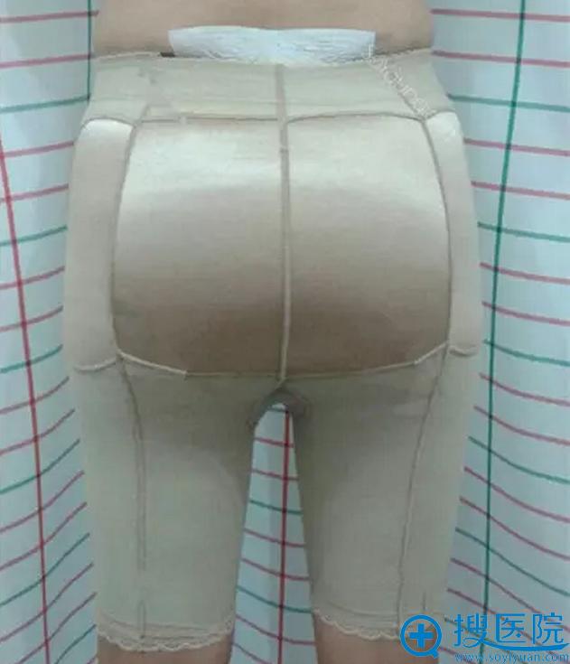 自体脂肪丰臀术后第二天需要穿塑身裤