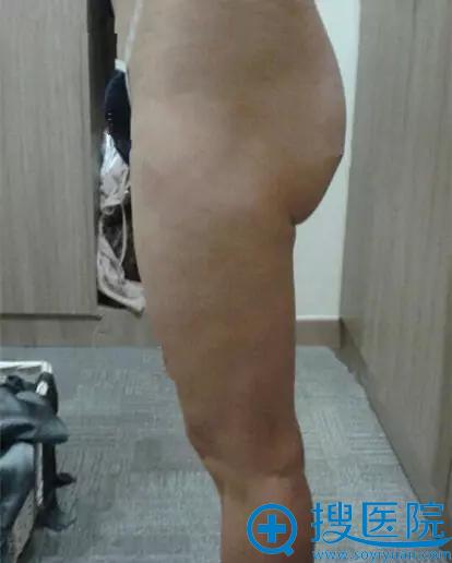 手术前臀部不是很翘还有一些下垂