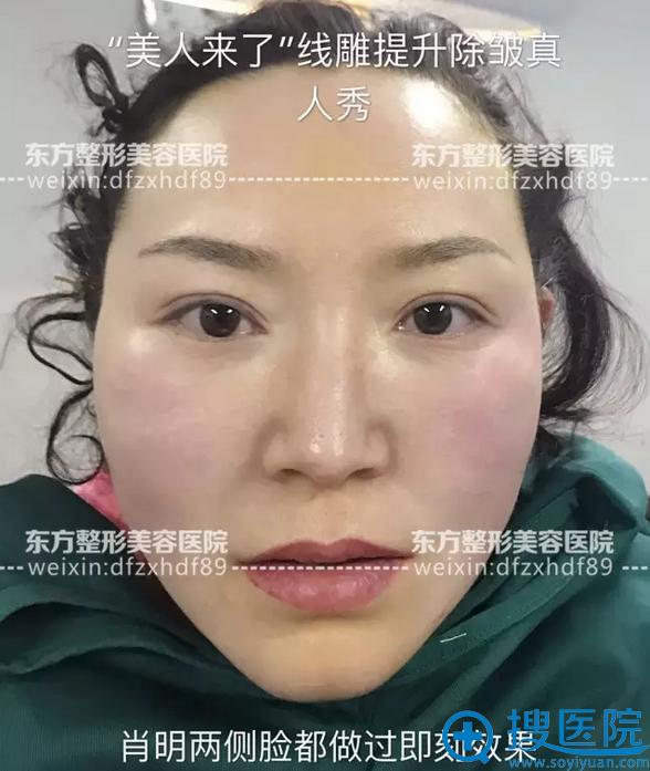 面部线雕全脸即刻效果展示