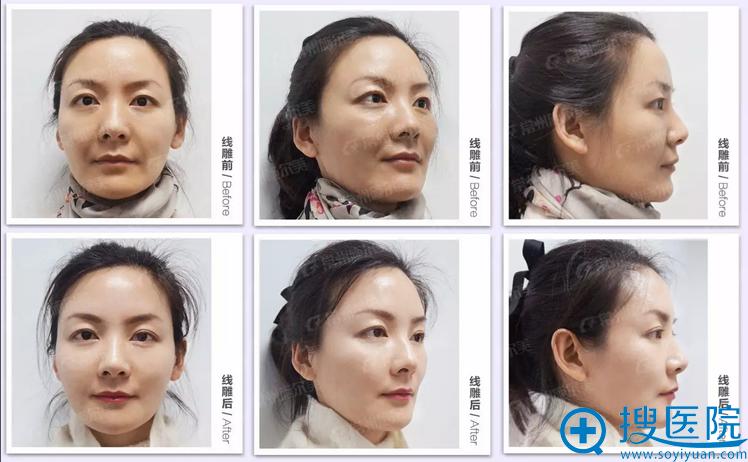面部悬吊提升手术20天了,看看对比照片